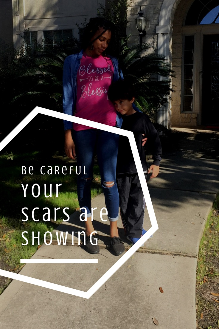 Some people need to hear about my scars. The scars are not separate from my #blessed #thelife. The scars are absolutely essential to my survival and the survival of those around me.